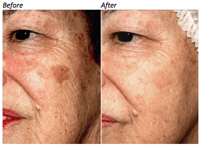 Before and after picture of face skin pigmentation cure