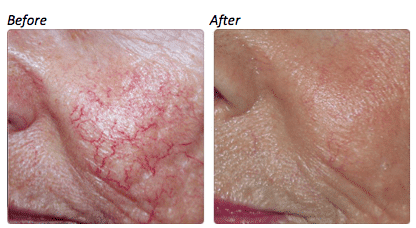 Before and after pictures of how to get rid of broken capillaries on face